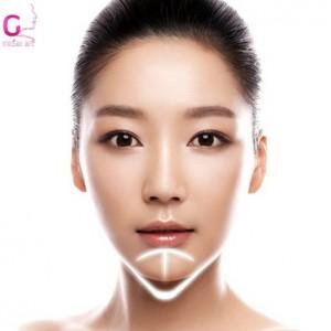 sau-don-cam-v-line-co-de-lai-seo-khong-1