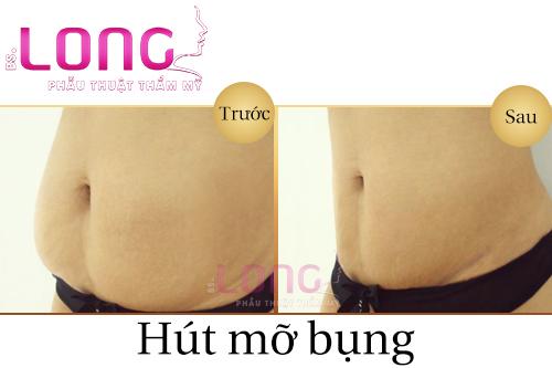 hut-mo-bung-nhu-the-nao-an-toan-nhat-1