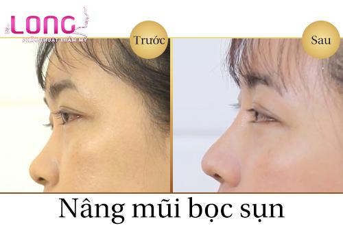 nang-mui-boc-sun-tai-co-gay-bien-dang-tai-khong-1