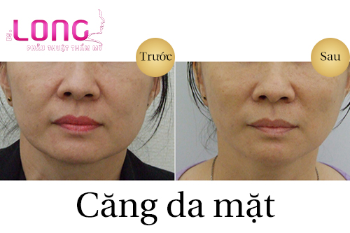 cang-da-mat-bang-chi-collagen-co-nang-co-mat-khong