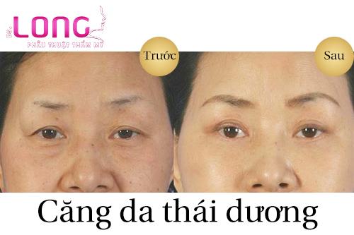 co-bao-nhieu-cach-cang-da-vung-thai-duong