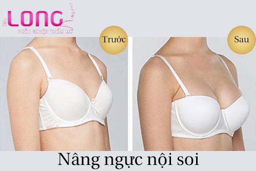 nang-nguc-noi-soi-an-toan-can-co-nhung-tieu-chi-nao-1