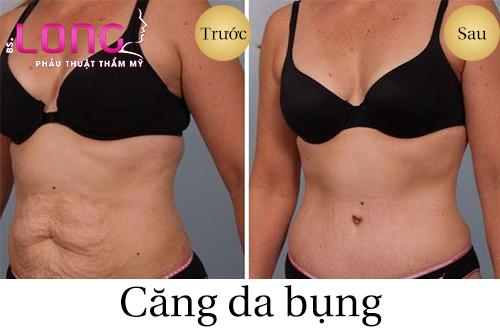 cang-da-bung-co-an-toan-khong-1