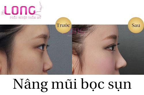 sau-khi-nang-mui-sun-nhan-tao-su-dung-duoc-bao-lau-1
