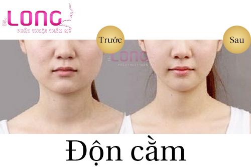 tim-hieu-xem-don-cam-khong-phau-thuat-co-an-toan-khong-1