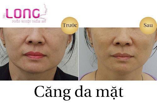 cang-da-mat-bang-chi-collagen-co-nang-co-mat-khong