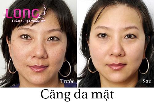cang-da-mat-bang-chi-vang-nano-bao-lau-thi-lanh-1